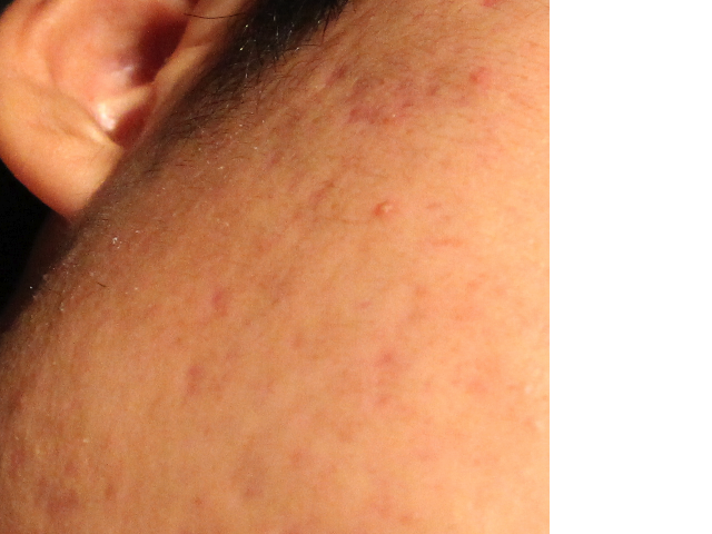 My acne scars