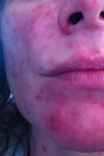 Before Accutane