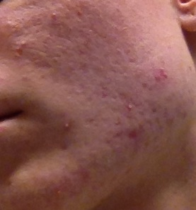 red marks and permanent scars?