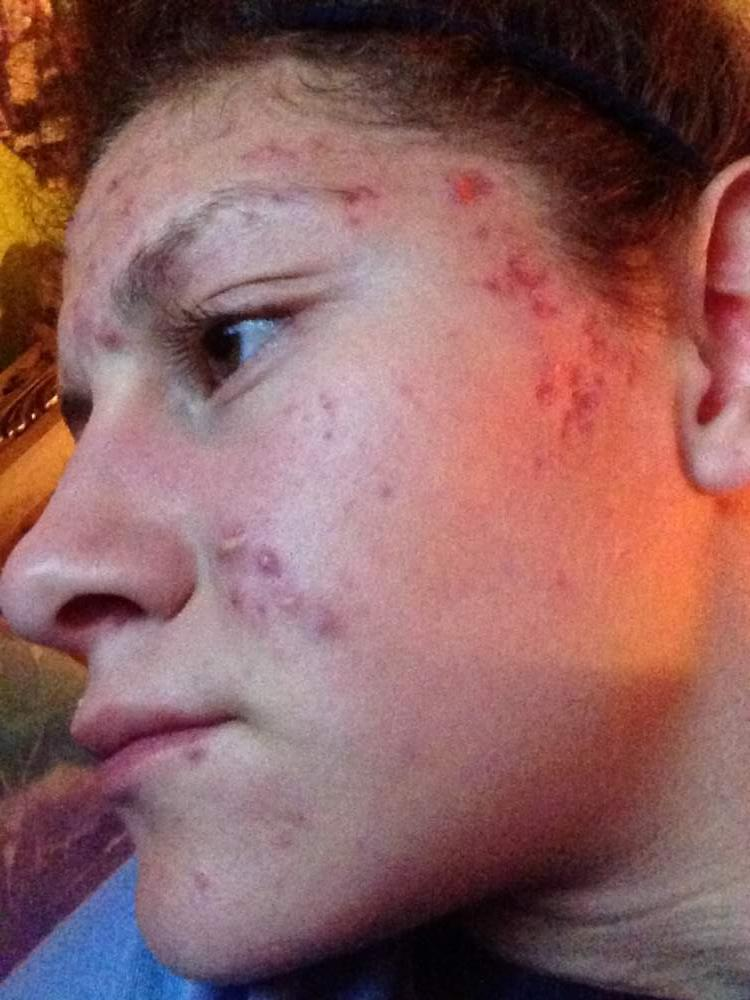 Day 2 of Accutane
