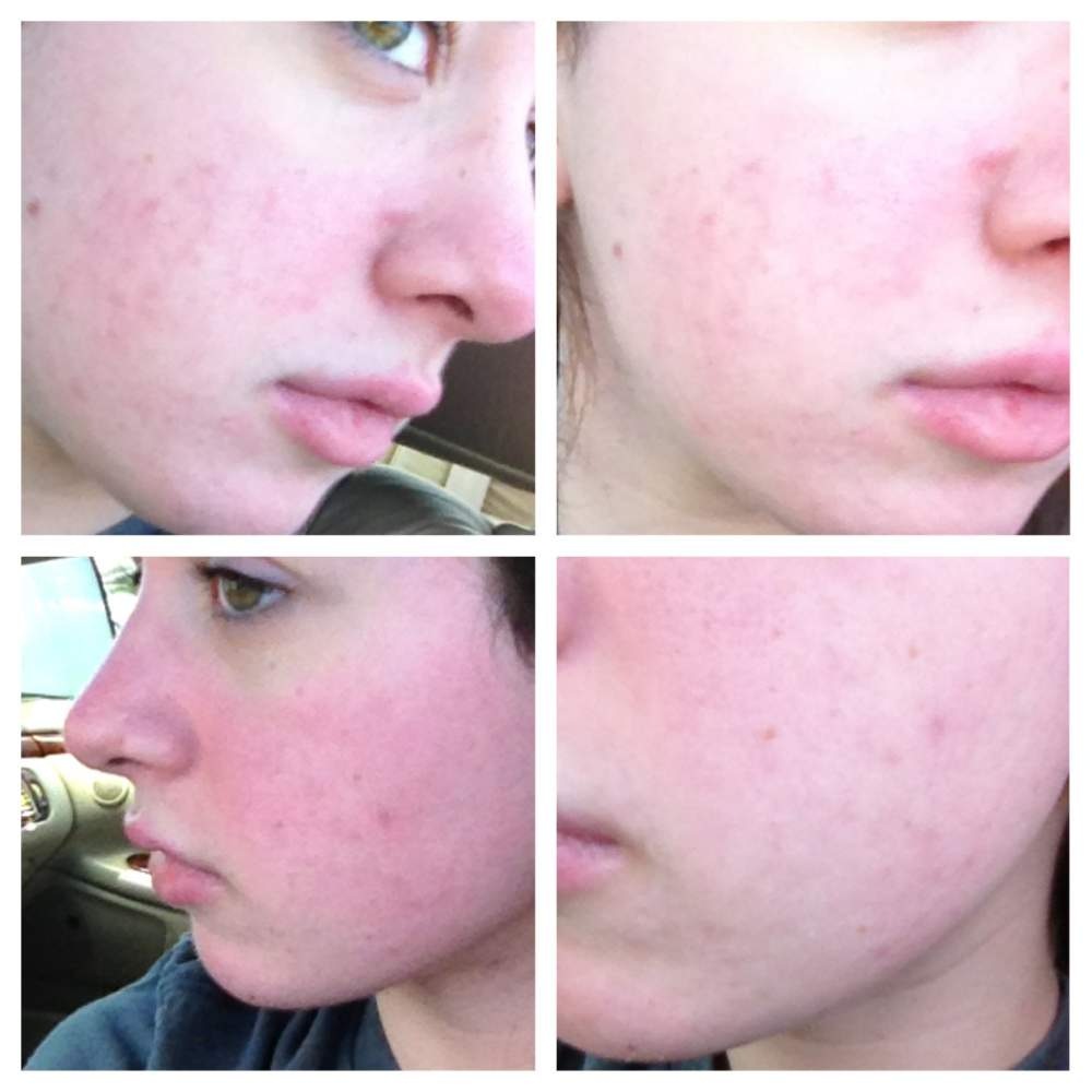 DAY 180 on Accutane