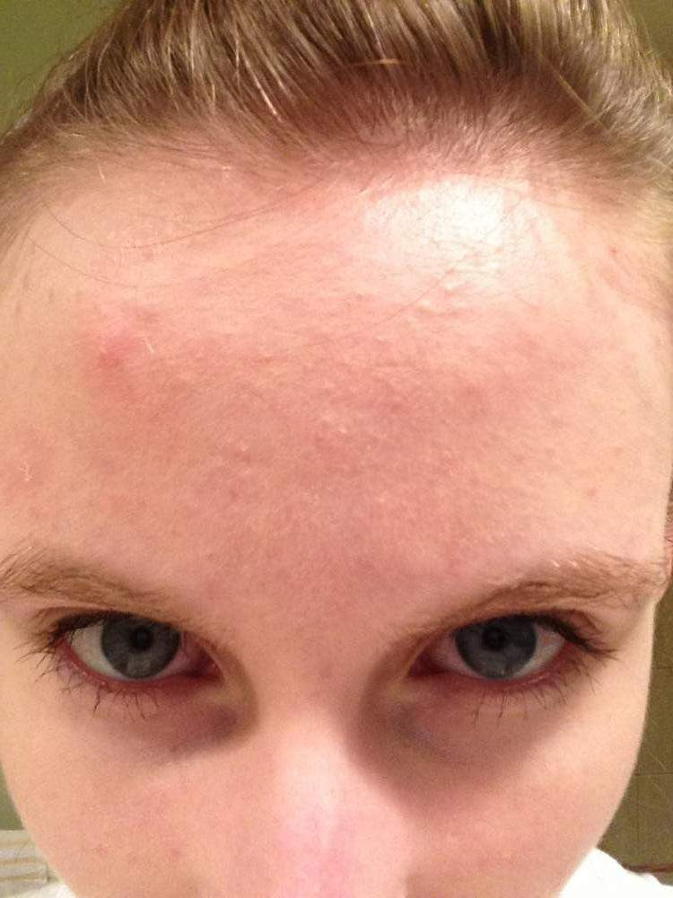 Day 32 of Accutane