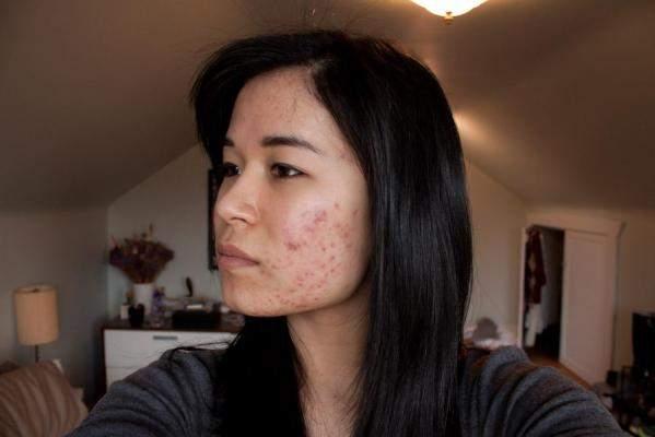 Left cheek (week 2)