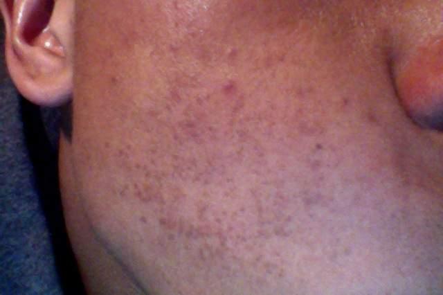 Unknown rash/acne