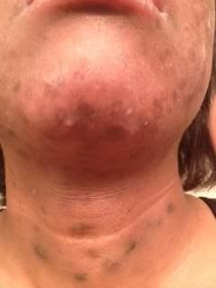 week 4 chin