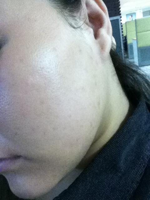 Left Cheek