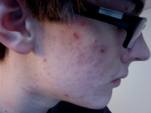 2nd Month on Accutane