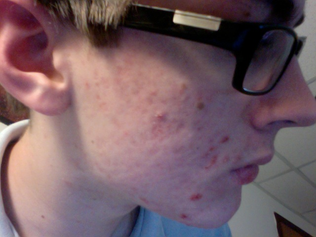 3rd Month on Accutane