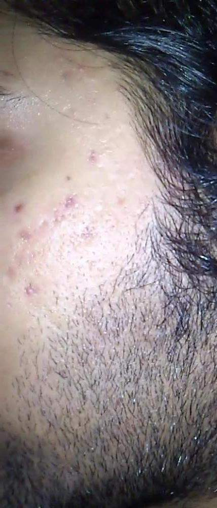 acne scars And marks1