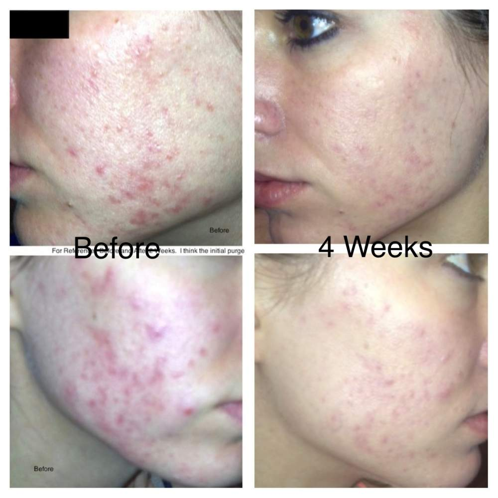 Before & After 4 Weeks