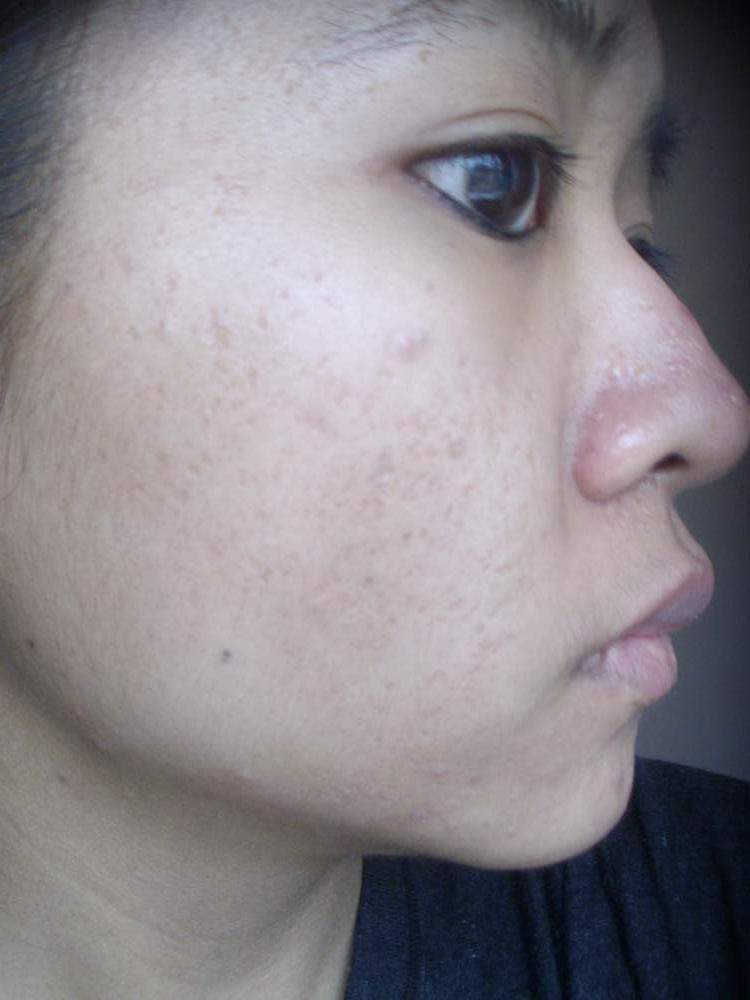 Progress pictures of my acne + red marks using Sulfacet-R and Topiderm