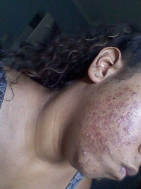 my acne pix