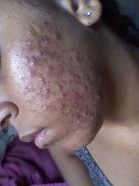 my acne