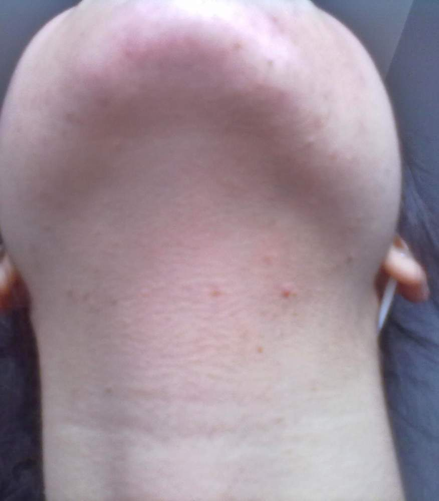 is this acne ? can i use this treatment ?