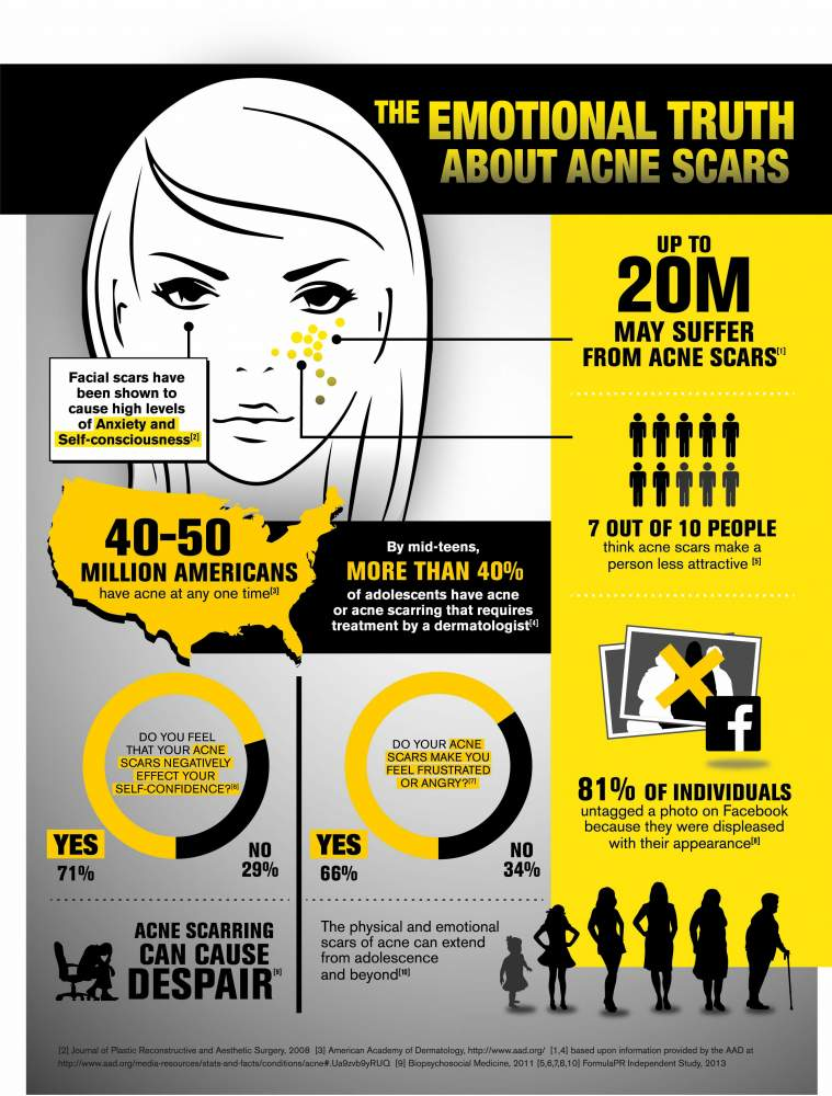 Acne Scar Infographic