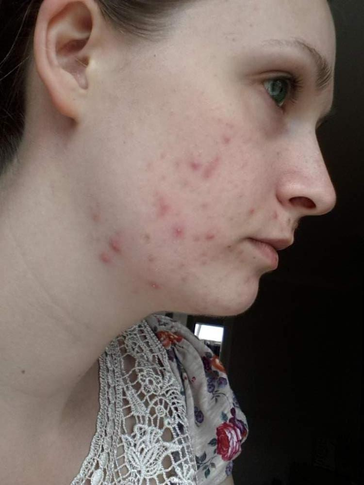 Journey to clearer skin