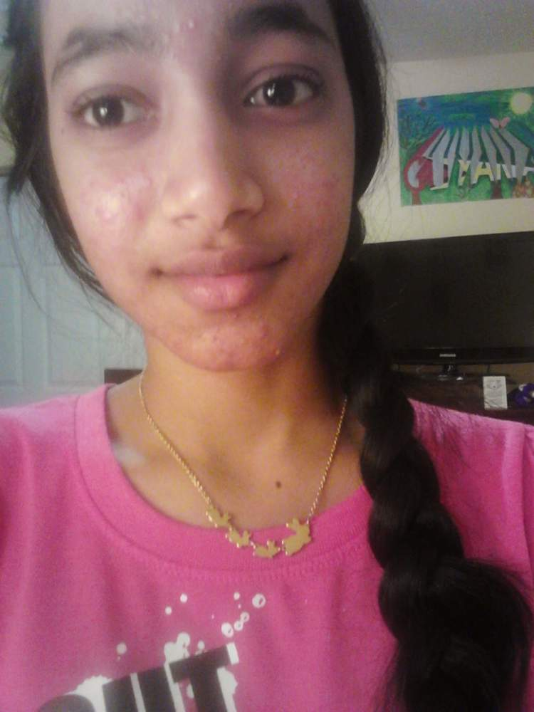 Before acne.org