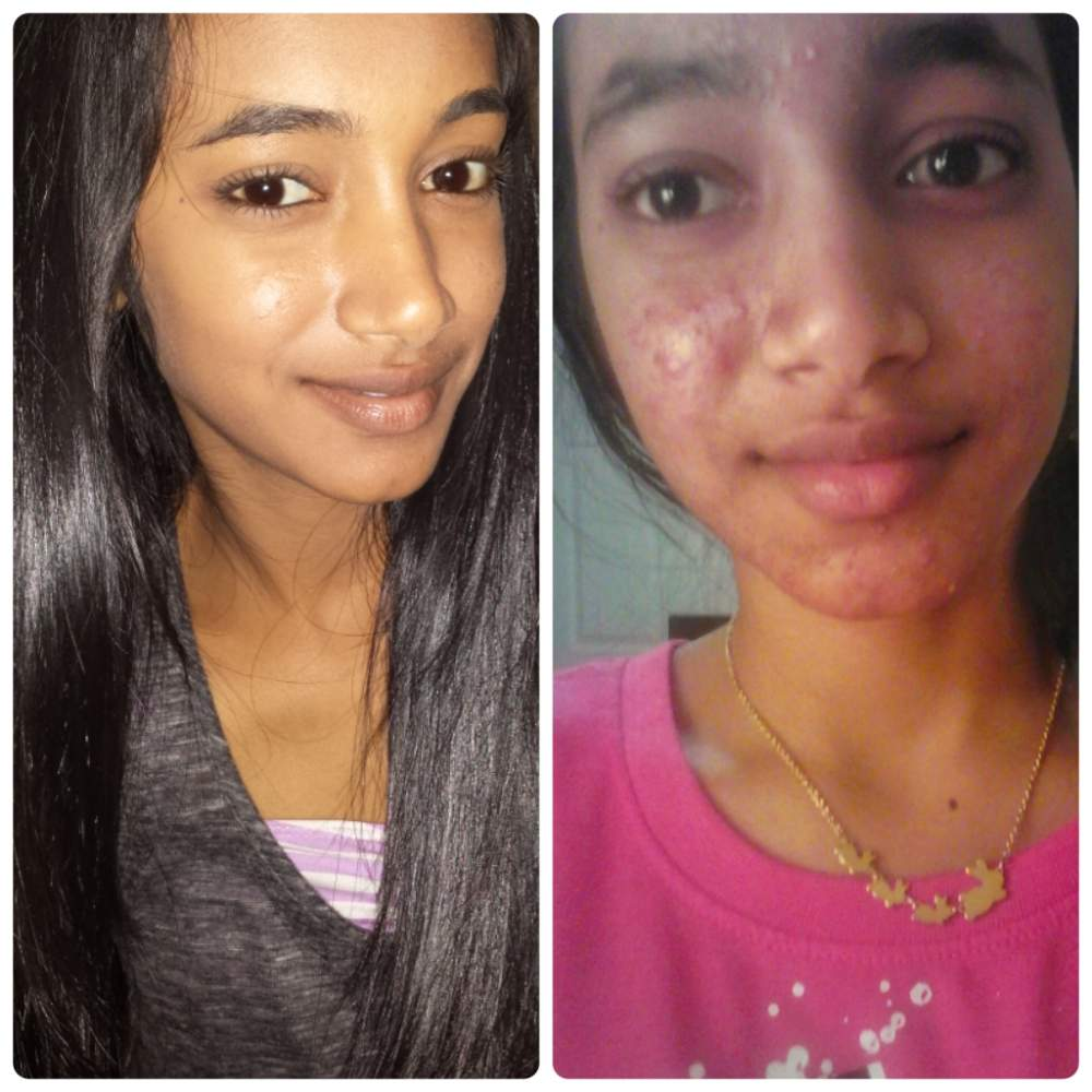 2-3 years of acne.org