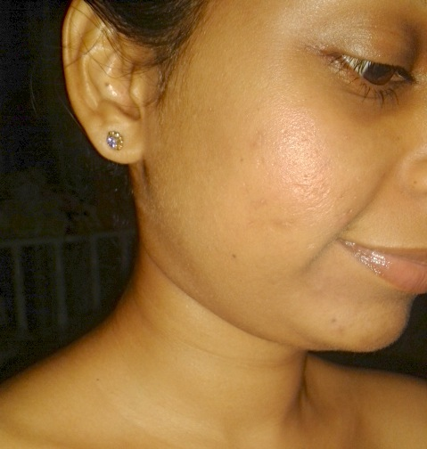 Right side - no make up used