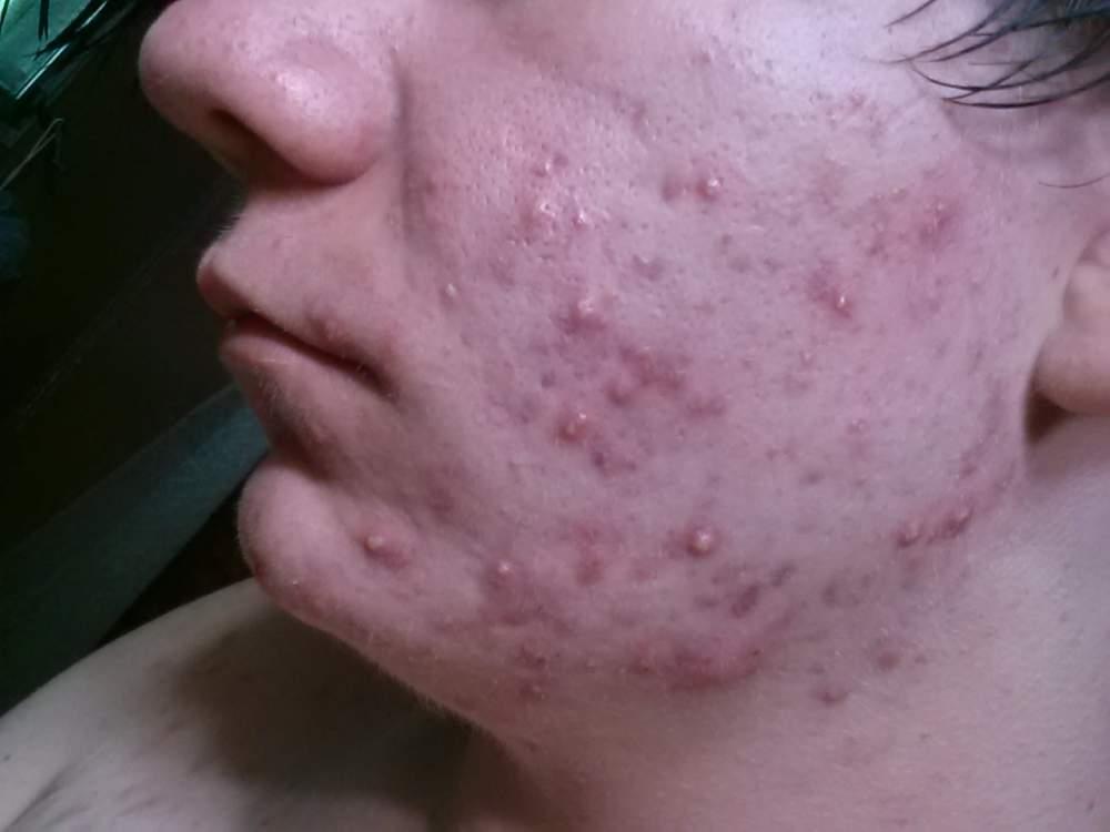 My acne progress.