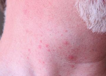 Neck acne (day 3, side shot)
