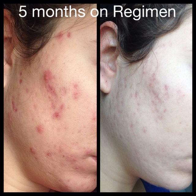 5 months on Regimen