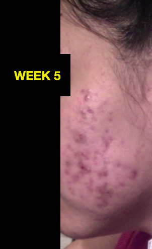 WEEK 5 RIGHT