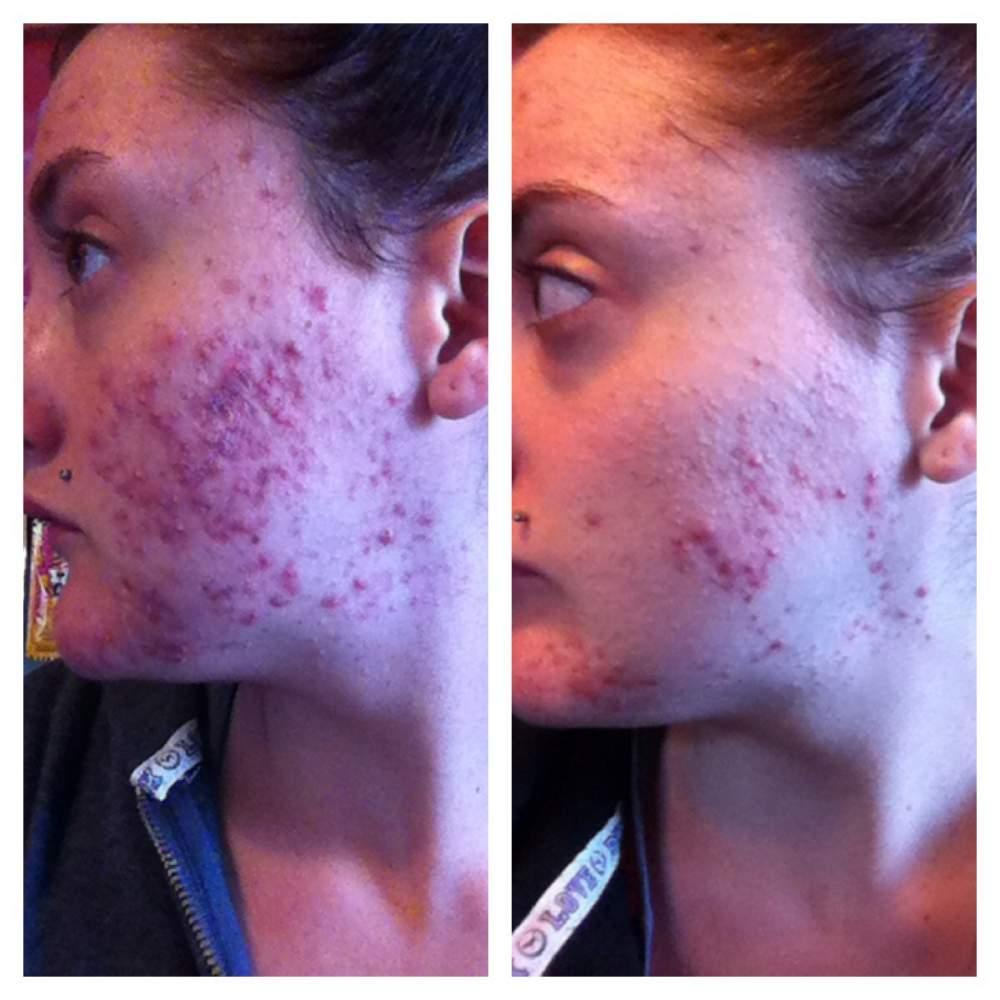 cystic acne progression