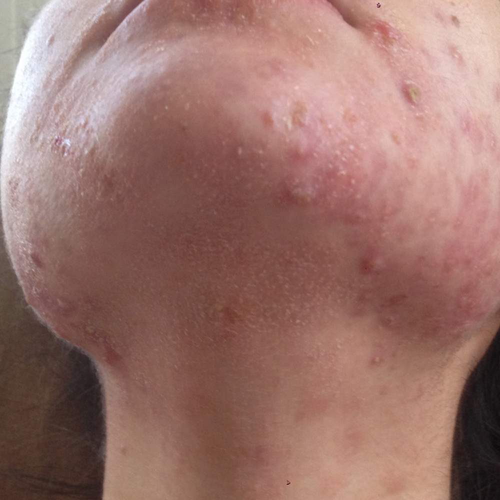 Day 16 - Chin