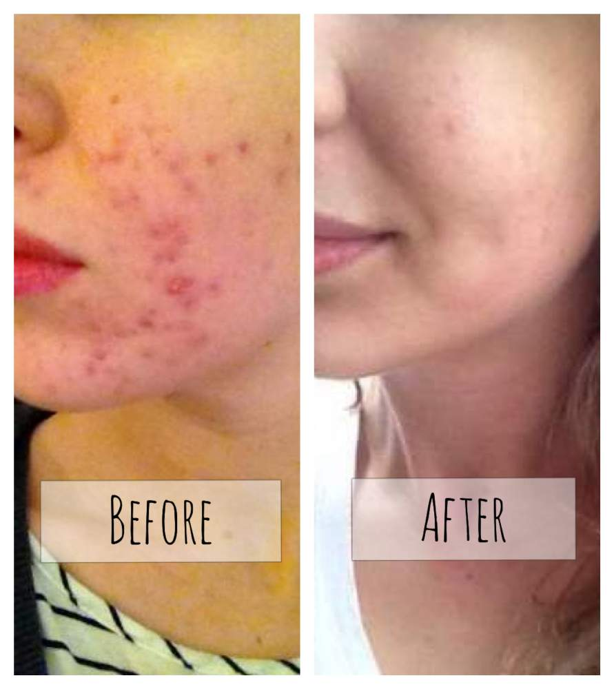 Before Amp After Regimen Pictures Amp Videos Acne Org