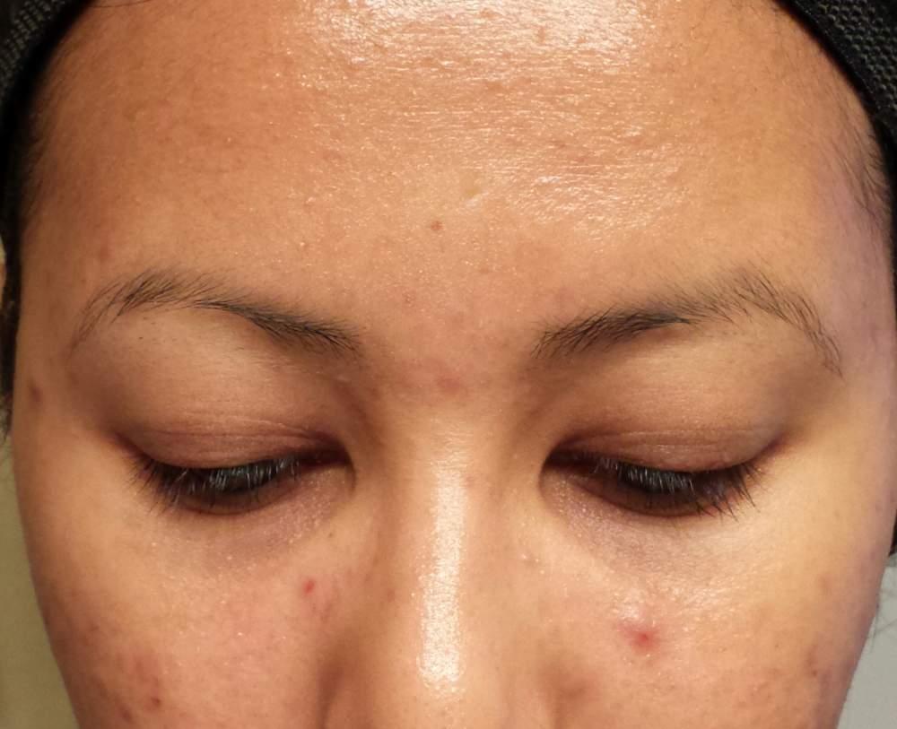 Forehead 11.20.13