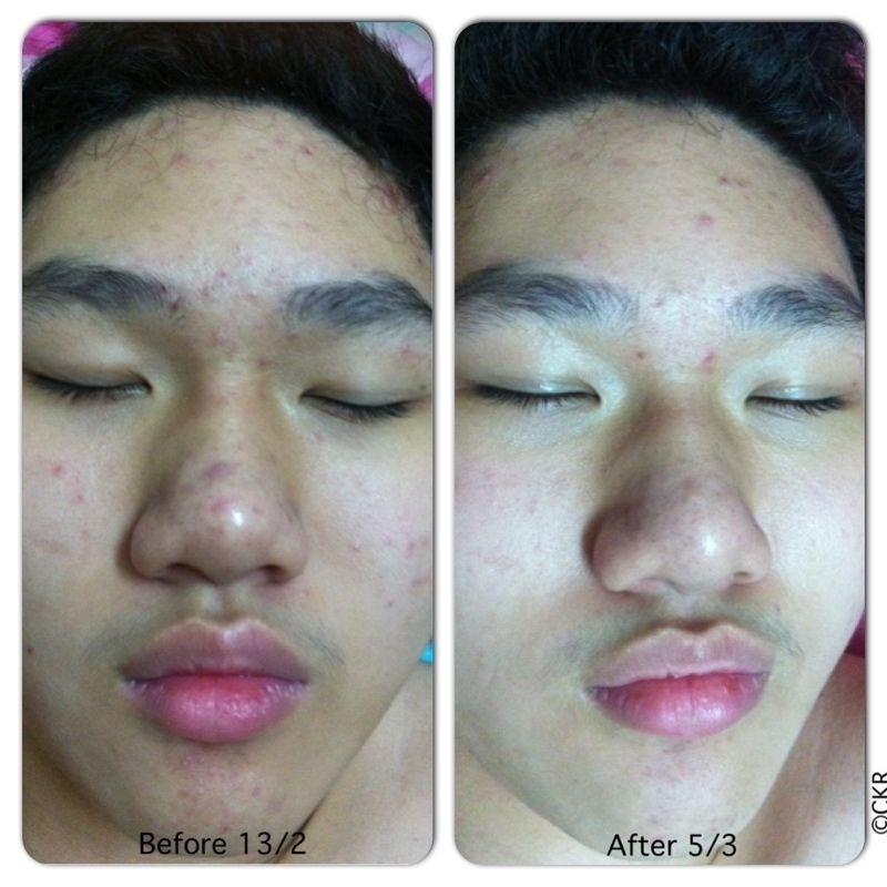 Acne problem (3)