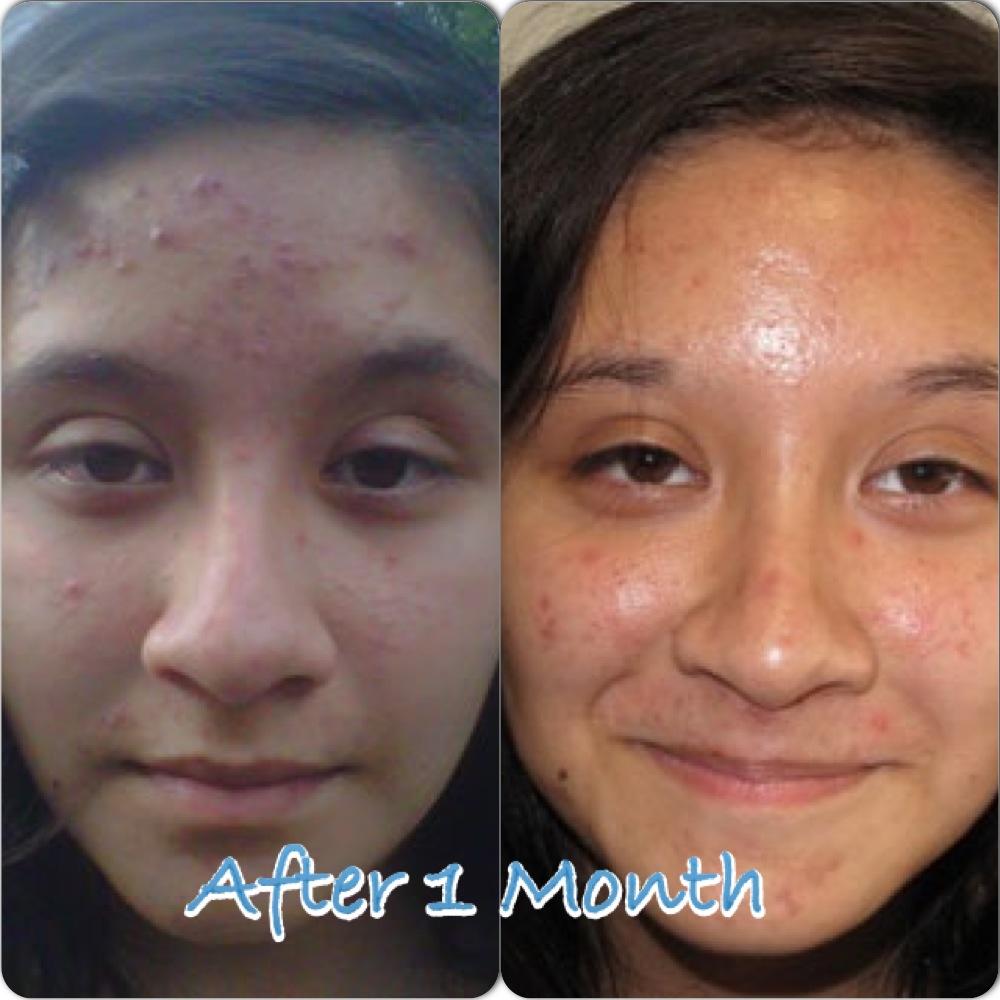 Acne problem (2)