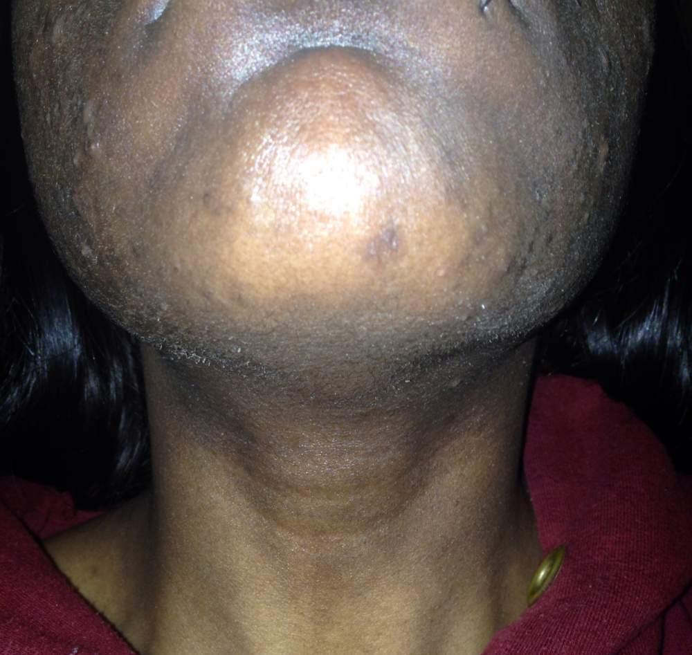 Day 14 (chin)
