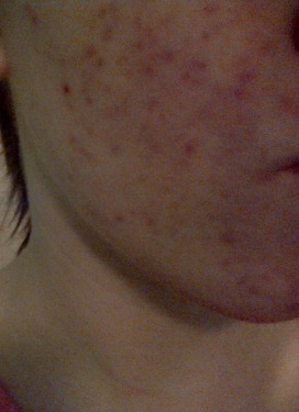 Week 2 day 17 of accutane