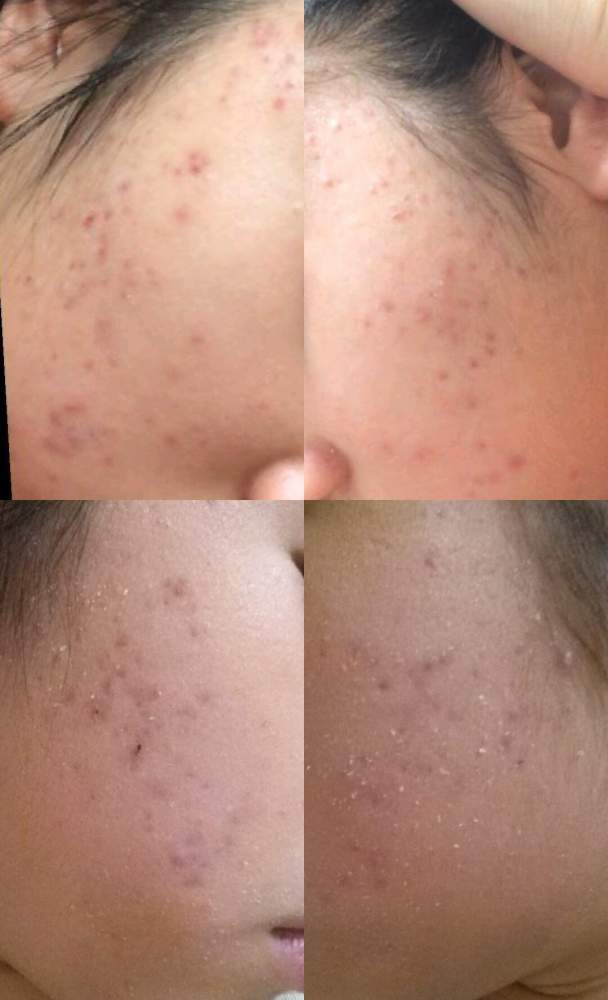 hyperpigmentation and acnes