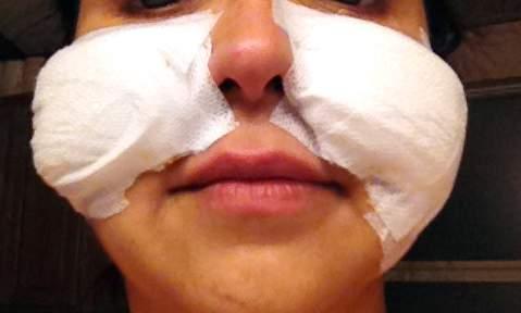 Bandages (Days 1 & 2 after procedure)