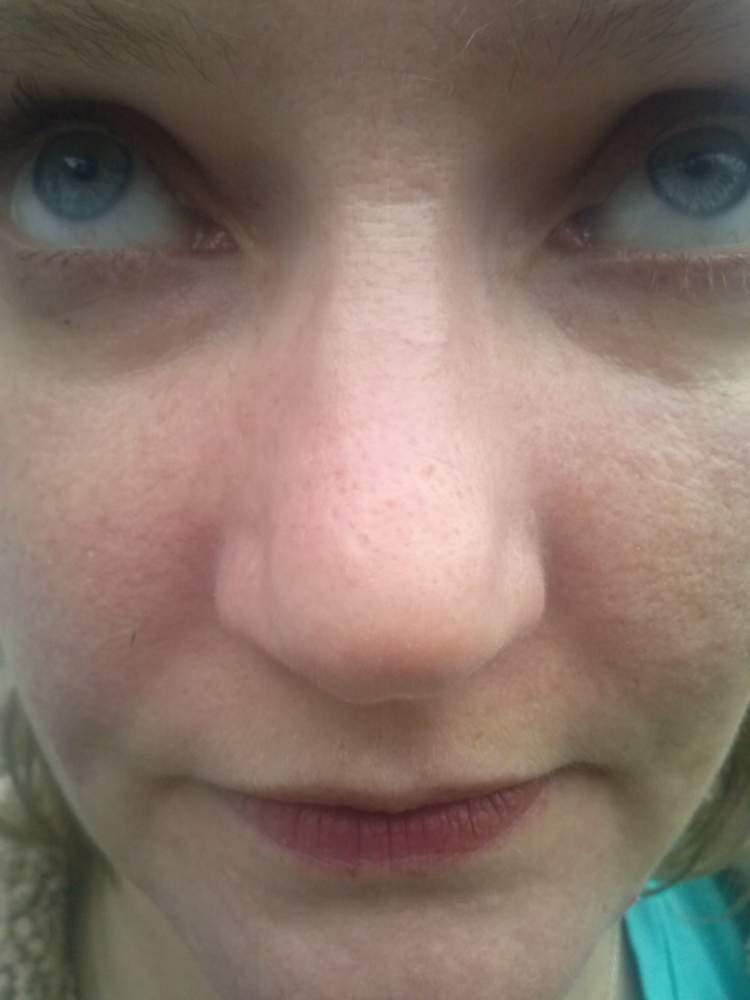 Nose/Cheeks