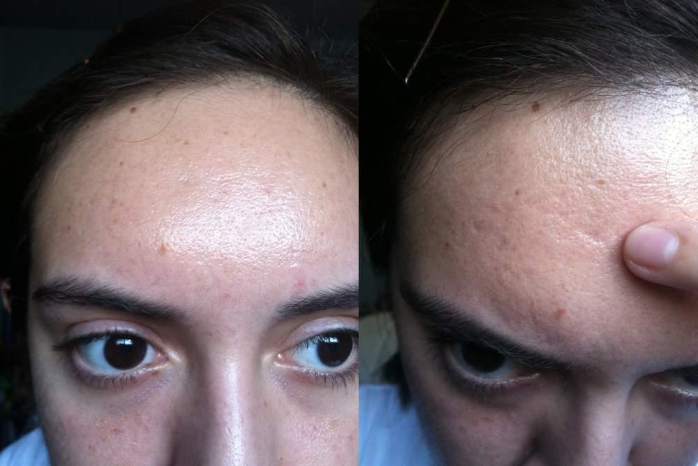 atrophic scar c   bactrim   pictures amp videos   acne org