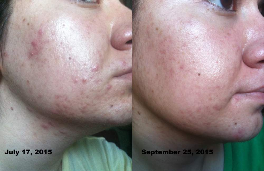 Skin Update - 10 weeks