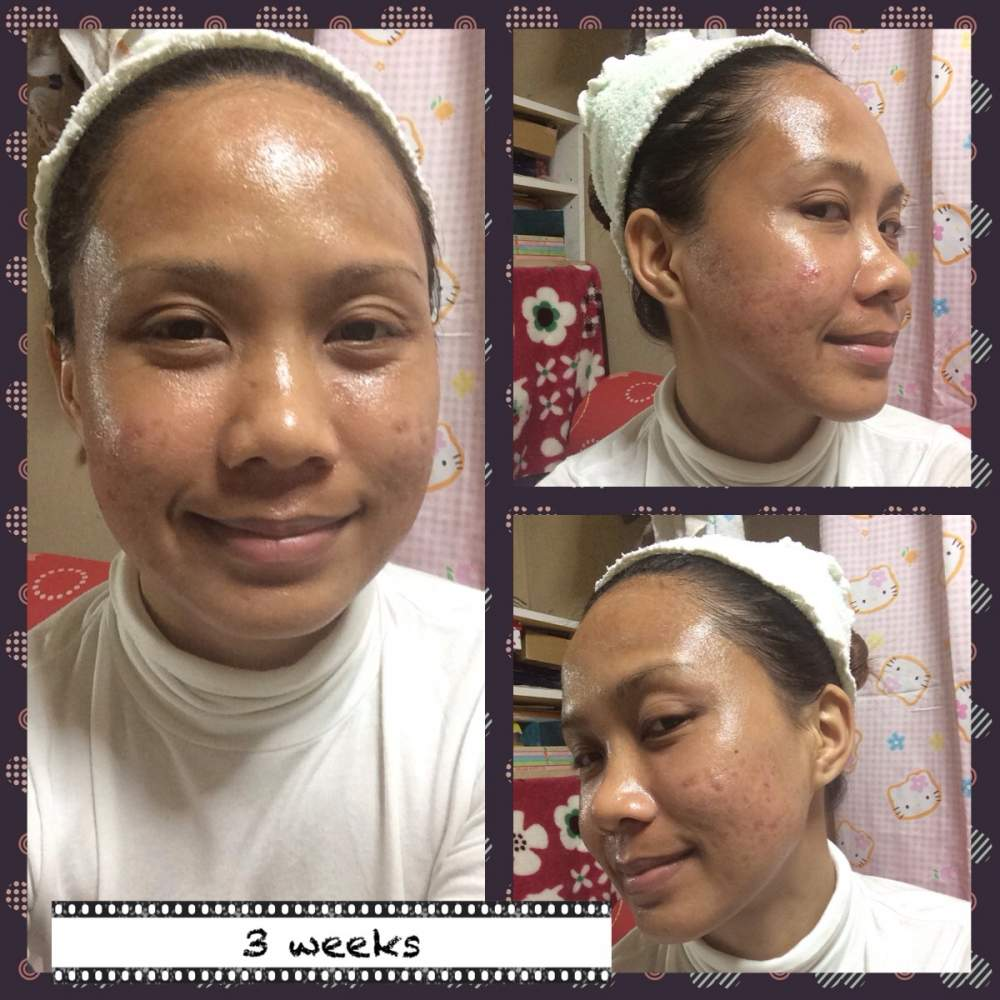 3rd week of regimen