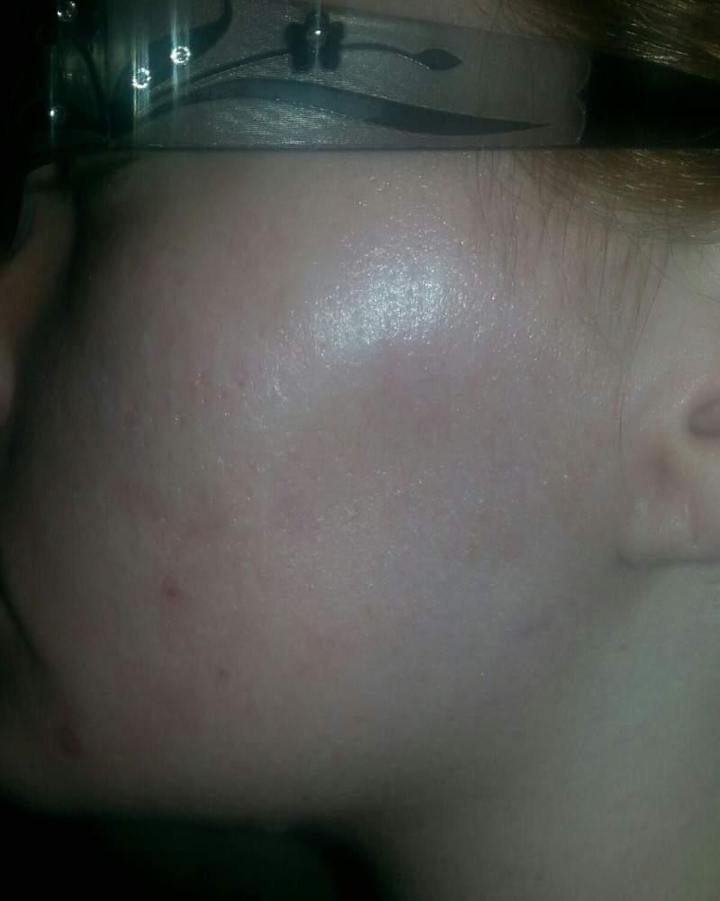 acne Pic 3 13 14 1