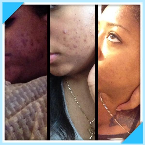 left side skin process