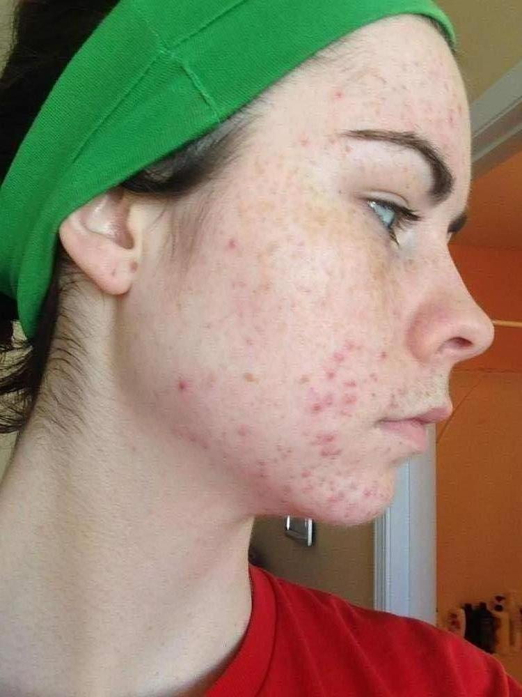 Week One - Proactiv - Right Side