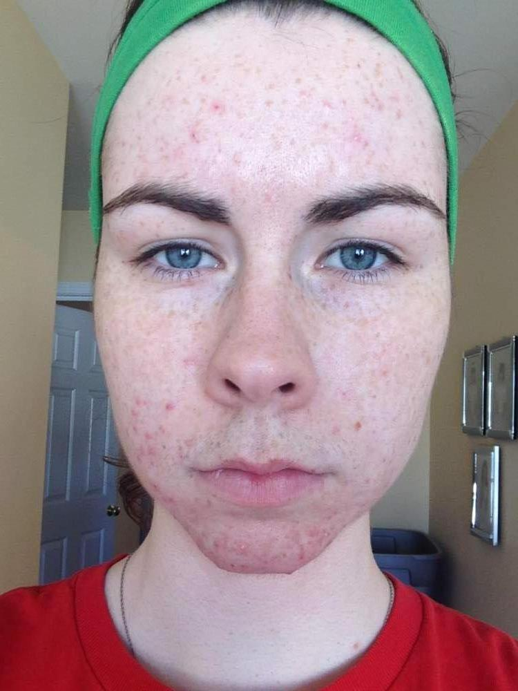 Week One - Proactiv - Full Face