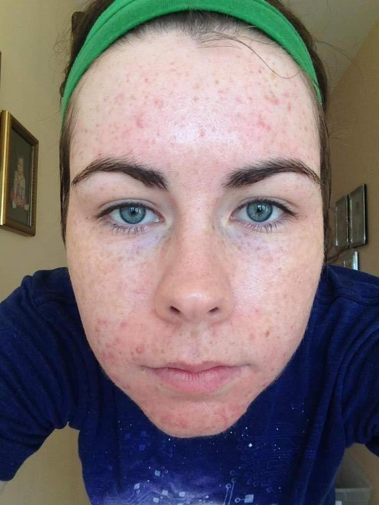 Week One / Day 3 - Proactiv - Full Face