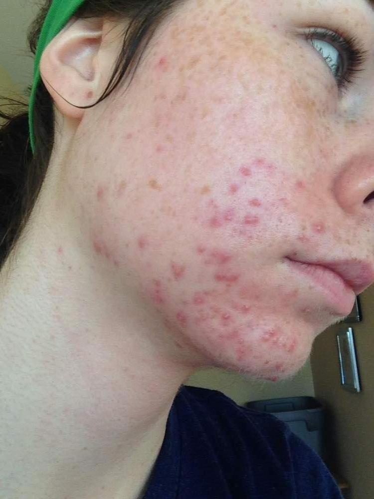 Week One / Day 3  - Proactiv - Right Jaw
