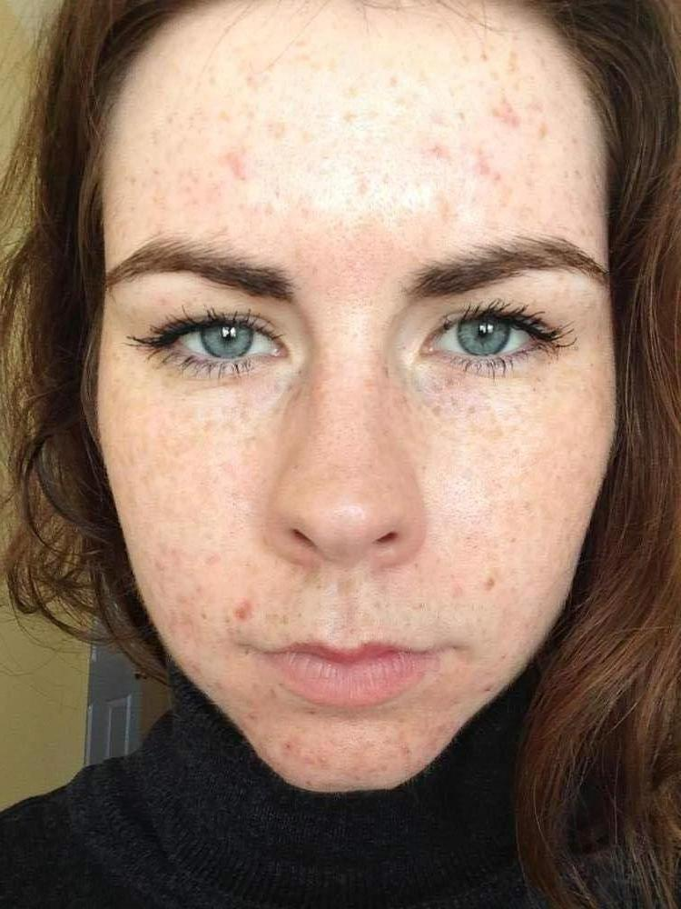 Week One / Day 4 - Proactiv - Full Face
