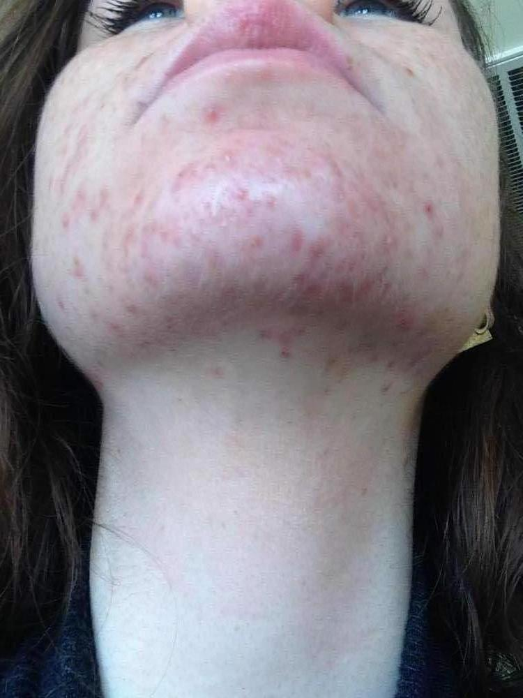Week One / Day 4 - Proactiv - Chin