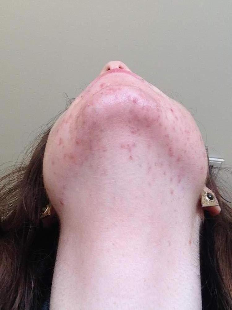 Week One / Day 4 - Proactiv - Chin and Neck